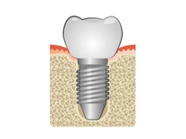 Rtec Dental Implants solutions